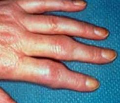 artritis symptomen hand